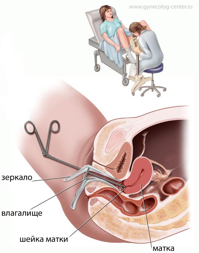 Железа Наботовая