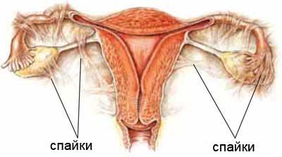 Спайки в трубах и беременность