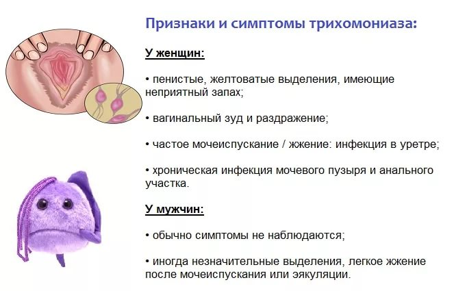 трихомонада симптомы у мужчин фото
